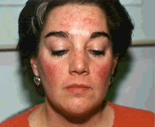 Rosacea Skin Care Blog Articles And Information About