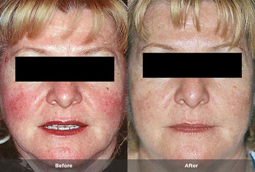 Treatment information facial rosacea seems